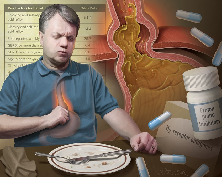 medical illustration of Man in pain due to GERD (gastroesophageal reflux disease) where acid from stomach enters the esophagus. Also depicted is a portion of the stomach herniated through the diaphragm. Proton pump inhibitors are a common and effective treatment. Background shows a GERD questionnaire to help physician evaluate patient.