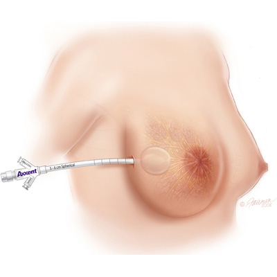 medical illustration of Breast tamp used after biopsy for radiation therapy