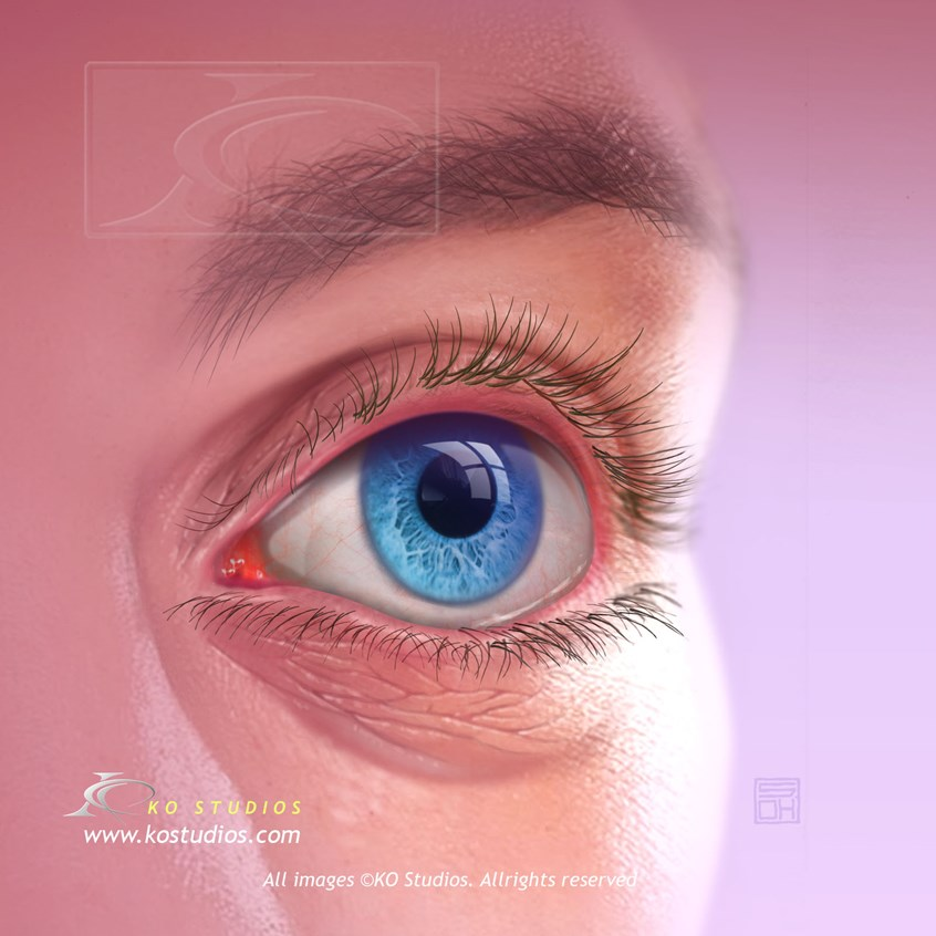 medical illustration of Three quarter view of face with eye