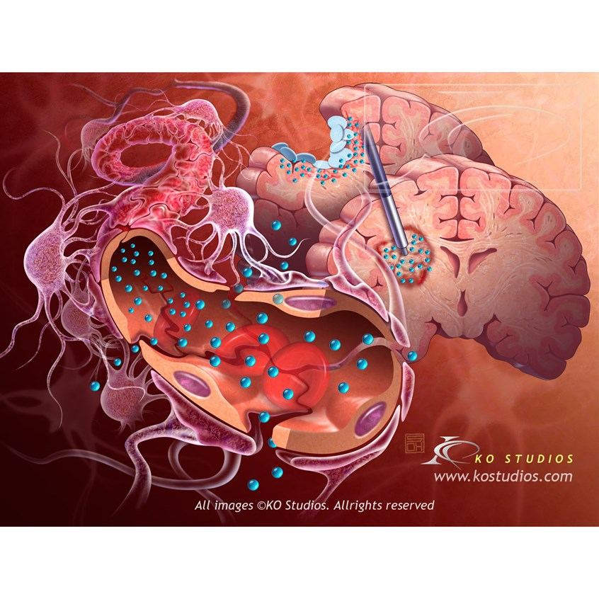 medical illustration of Central nervous system (CNS) Antineoplastic, chemotherapy treatments for tumors, implications of blood brain barrier