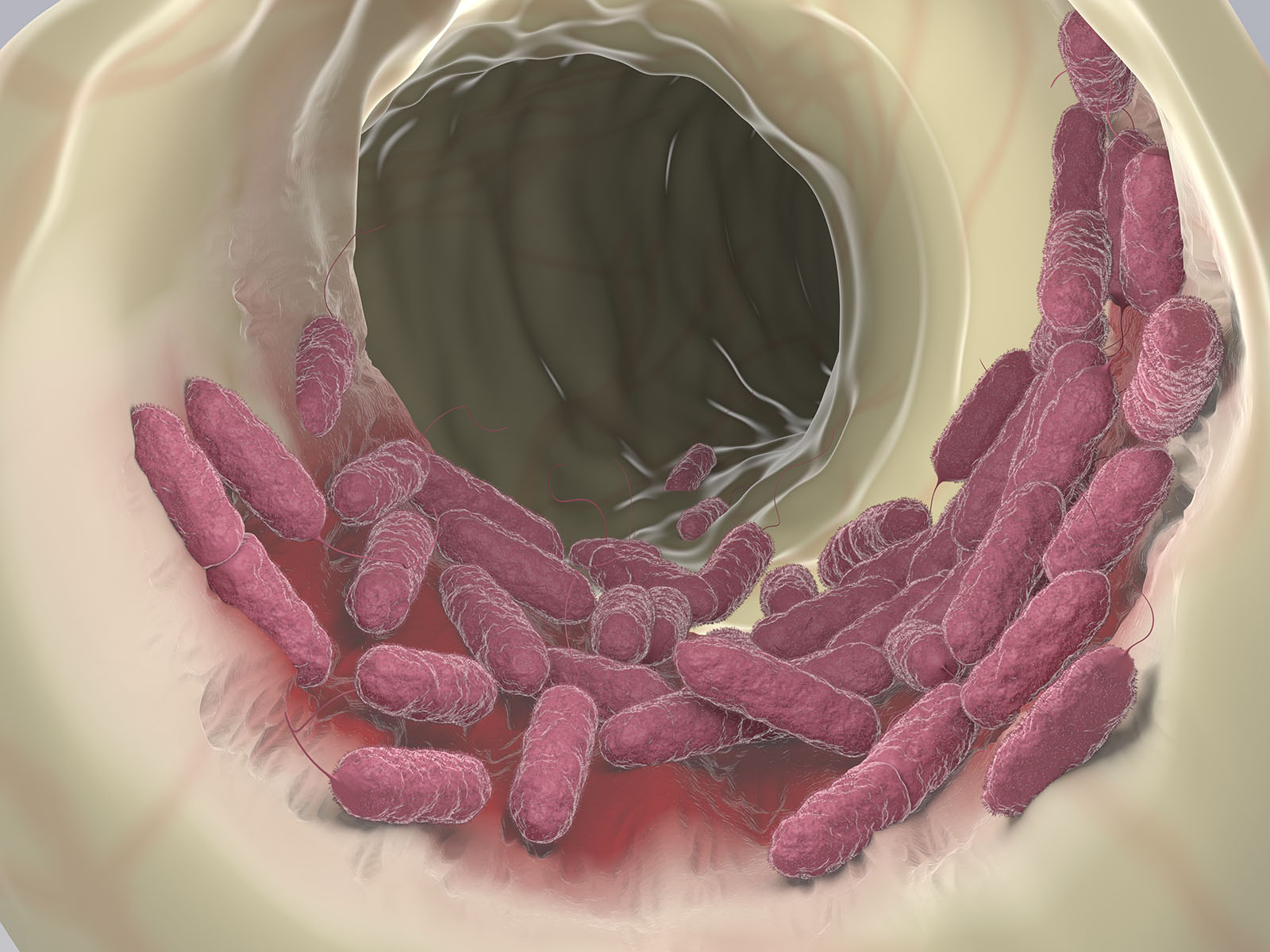medical illustration of Pseudomonas is a Gram-negative aerobic bacteria that is hearty in harsh environment and resistant to many antibiotics.