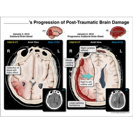 medical illustration of This exhibit demonstrates the progression of post traumatic brain injuries sustained by the client during the accident.