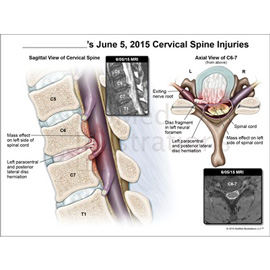 medical illustration of This exhibit demonstrates the cervical spine injuries the client incurred during the accident.