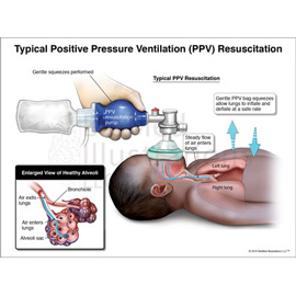 medical illustration of This exhibit demonstrates Proper PPV Resuscitation on a newborn infant.