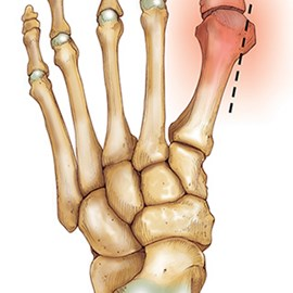 medical illustration of Region of the 1st metatarsal to be removed in bunion surgery