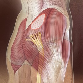 medical illustration of Gluteal injection site for high volume IM chemotherapy