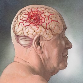 medical illustration of Cancer of the brain, glioblastoma tumor