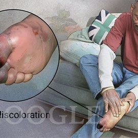 medical illustration of Patient  examining foot with gangrene