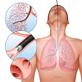 medical illustration of Airbrush, Three-dimensional / Models, Education, Patient Education, Publishing, Stock, Web, Anatomy, Disease Management, General Medicine, Medical Devices, Respiratory