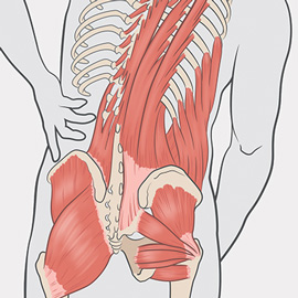 medical illustration of Illustration depicts various factors contributing to hip and back pain.
