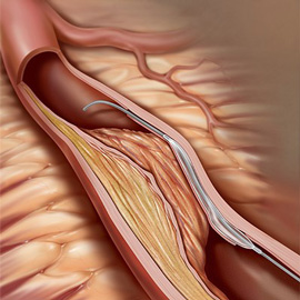 medical illustration of Percutaneous coronary intervention (PCI) for chronic total occlusions.