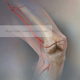 medical illustration of Journal cover illustration about the difficulties and options for the treatment of superficial femoral artery disease (SFA).