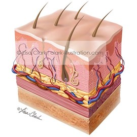medical illustration of Skin is made up of two layers that cover a third fatty layer. This illustration includes the epidermis, dermis and subcutaneous tissue. It includes nerves, sweat glands, oil glands, and hair follicles. The image was used in patient education materials.