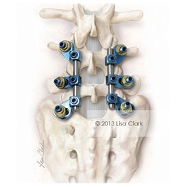 medical illustration of Spinal fusion is the most widely performed surgery for scoliosis. This illustration was intended to demonstrate a spinal fixation device for correction of posterior spine defects.