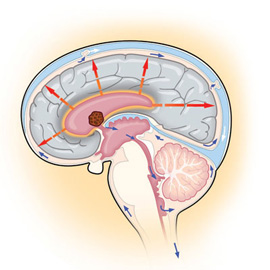 medical illustration of Information Graphics, Anatomy, Neuroscience, Neurosurgery