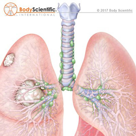 medical illustration of Illustrated by Body Scientific International, LLC and published by StudioNorth.