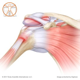 medical illustration of Illustrated by Body Scientific International, LLC and published by Wolters Kluwer.