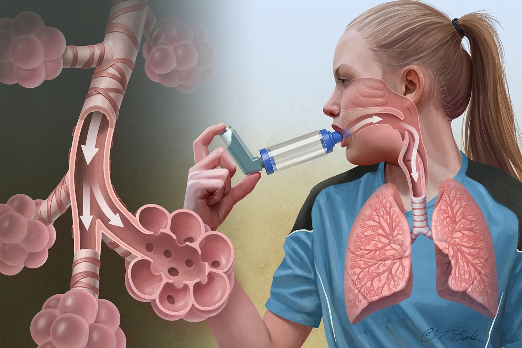Бронх астма картинки